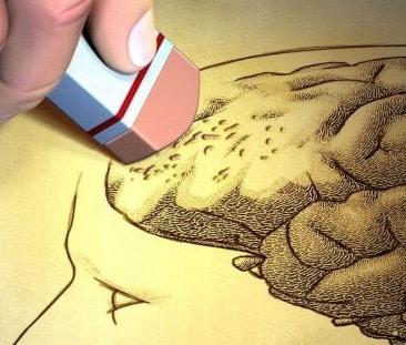 Alzheimer: la causa è da ricercare nella parte del cervello che produce dopamina