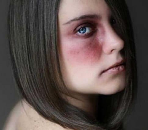 Ammonimento ottimo deterrente per salvare le donne vittime di violenza